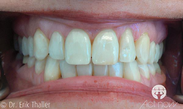 Unsichtbare Zahnregulierung